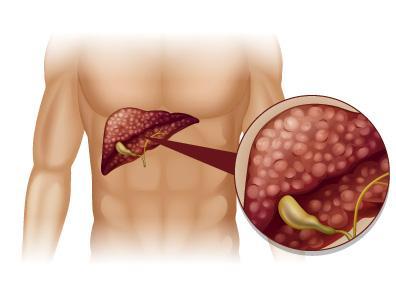 Cirrosis alcohólica: síntomas y tratamiento – Bupa