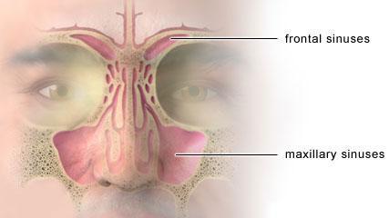 tratamiento para sinusitis medicamentos
